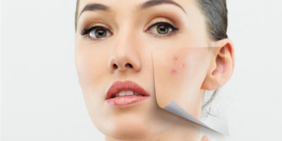 Acné et révision des cicatrices d'acné
