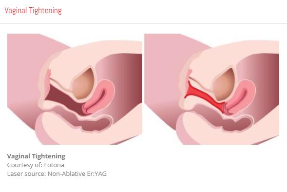 Vaginal Tighting