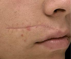 Traitement de cicatrices faciales