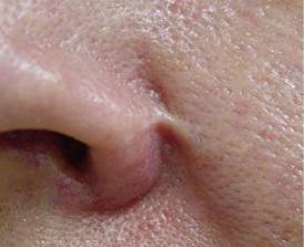 Traitement de cicatrices nasales