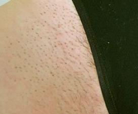Réduction permanente des poils