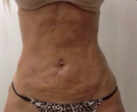 TightSculpting