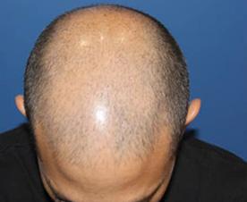 Alopécie au Derma Roller